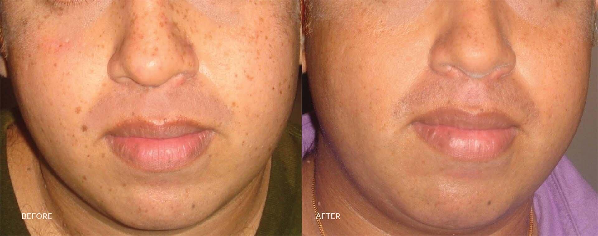 Skin care in sri lanka