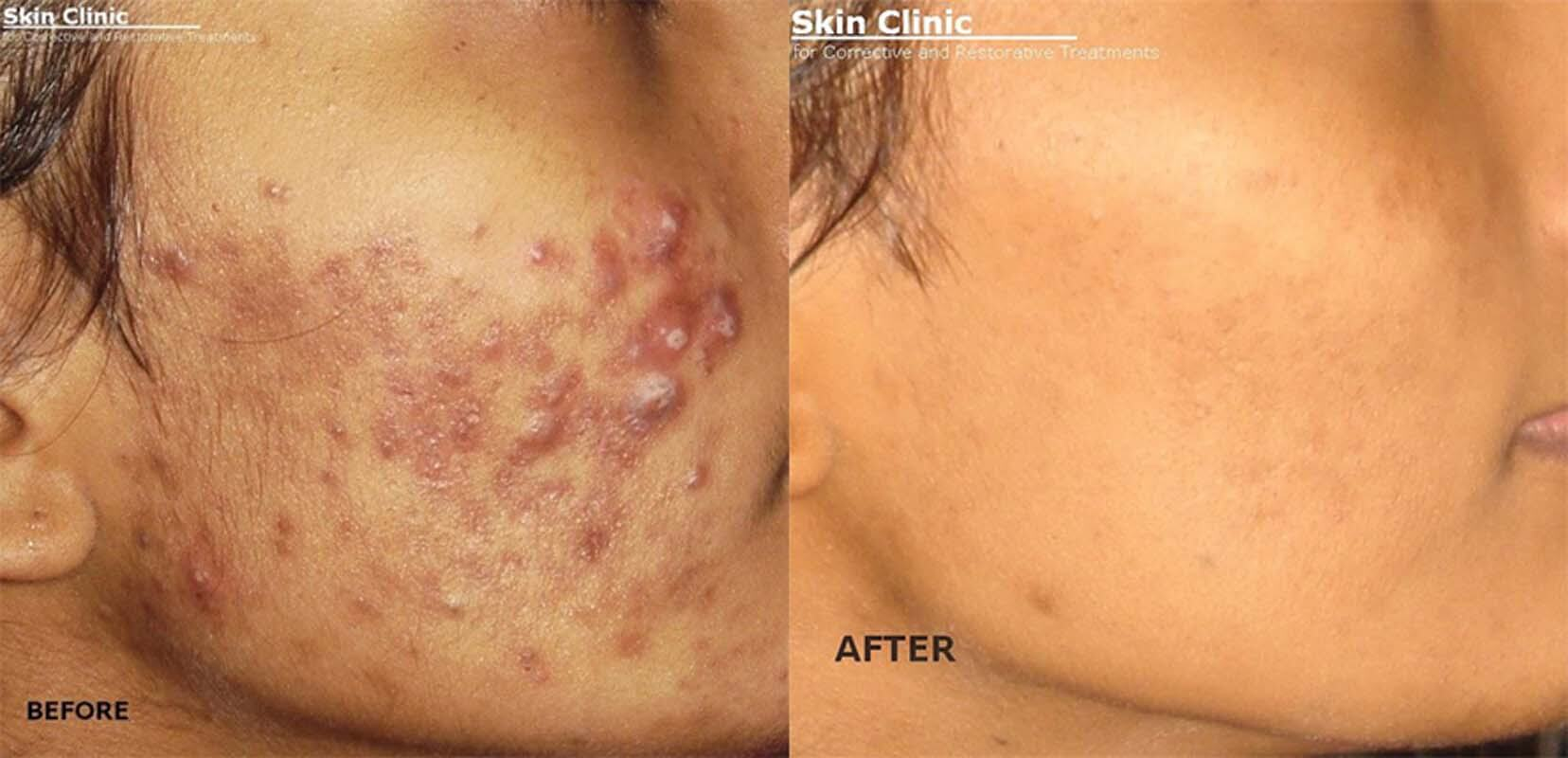 skin doctors in colombo