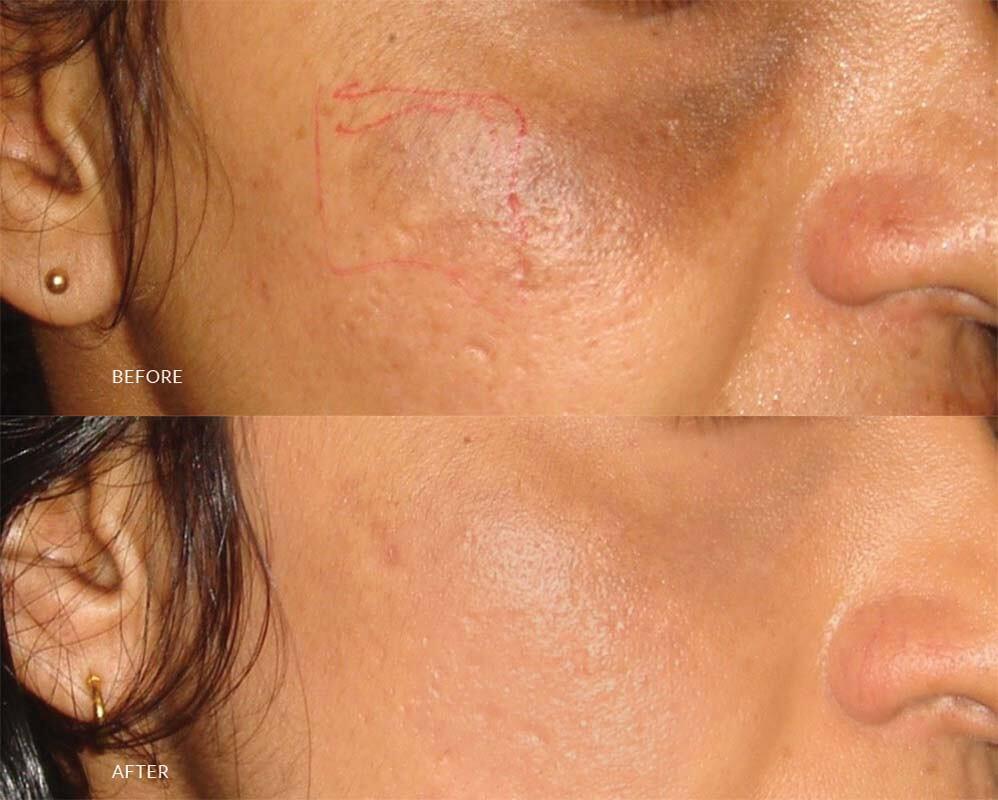 best skin specialist in sri lanka