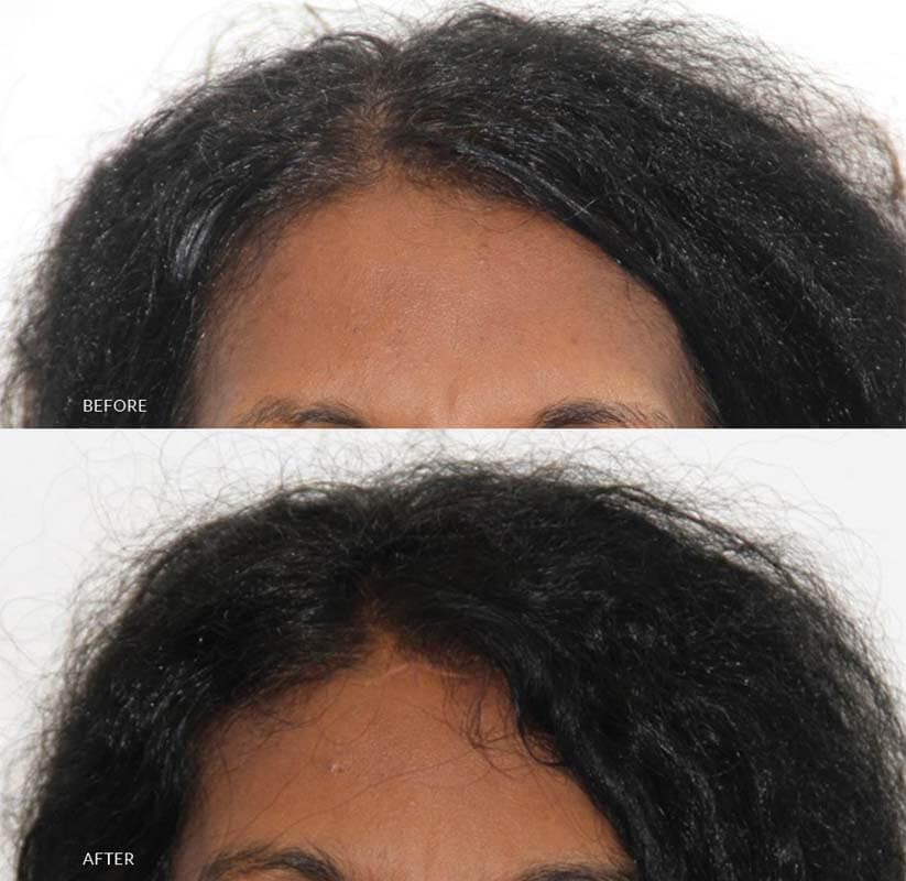 plastic surgery in sri lanka