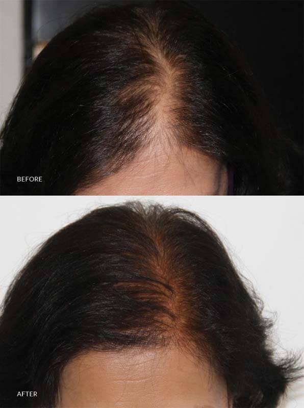 skin clinic in sri lanka