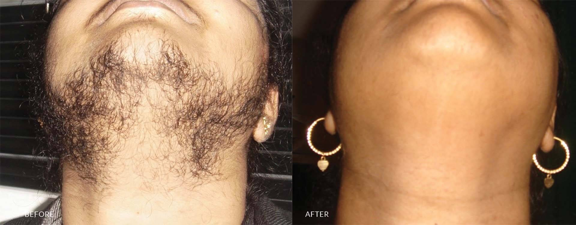 Hair Transplant in sri lanka
